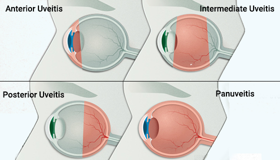 Kinds-Of-Uveitis
