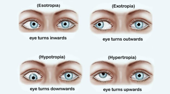 Types-Of-Squint