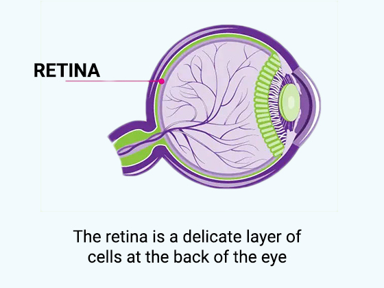 What-is-RETINA